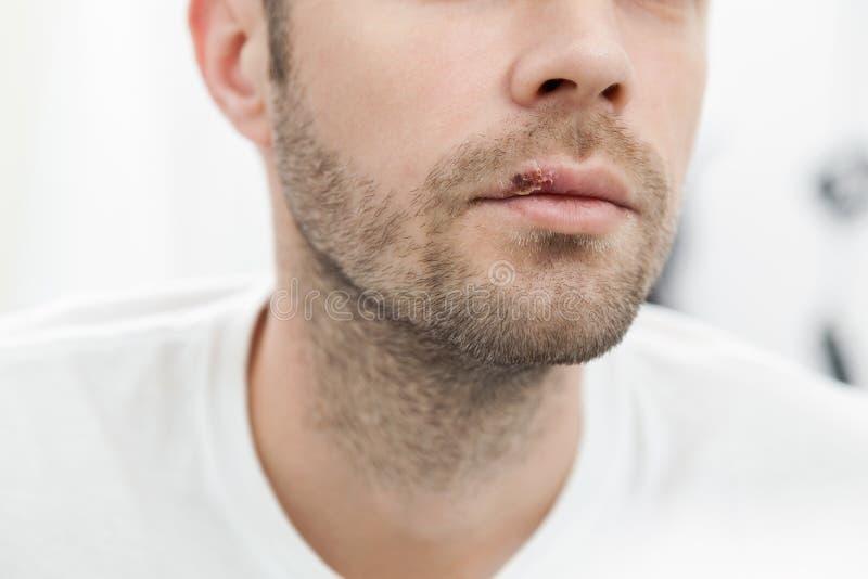 Молодой человек страдая от герпеса на его рте стоковые изображения rf