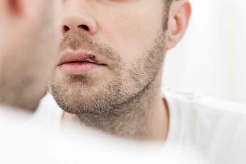 Молодой человек страдая от герпеса на его рте стоковые фотографии rf