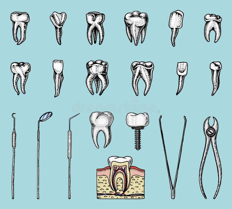Молярная эмаль зубов, зубоврачебный комплект оборудование аппаратур доктора дантиста ротовая полость чистая или больная здоровье  иллюстрация вектора