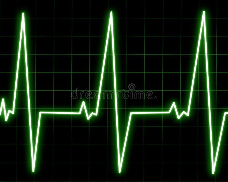 Монитор сердца бесплатная иллюстрация