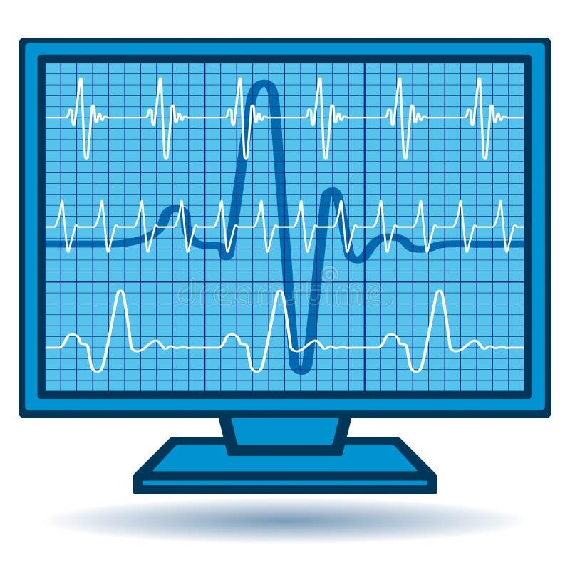 монитор cardiogram иллюстрация вектора