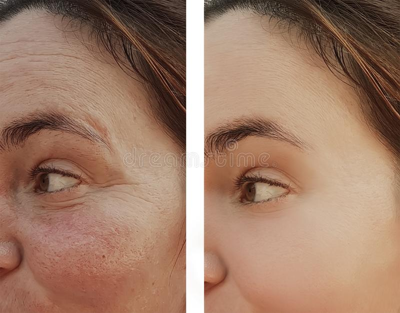 Морщинки глаза женщины перед и после процедурами по косметики дерматологии стоковая фотография
