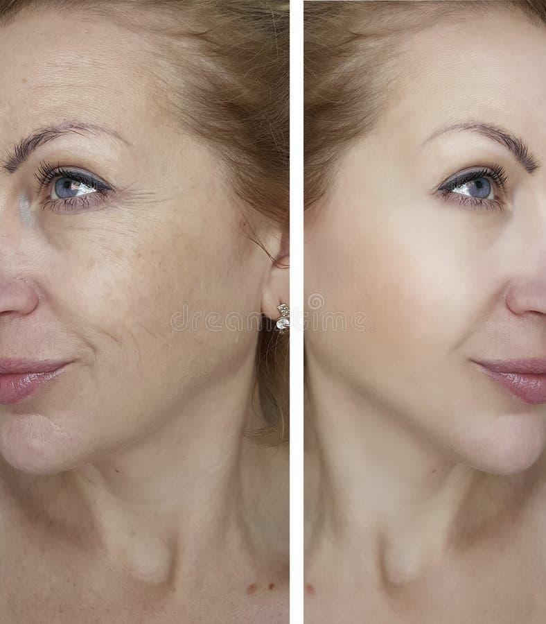 Морщинки девушки перед и после заломом удаления стоковое изображение rf