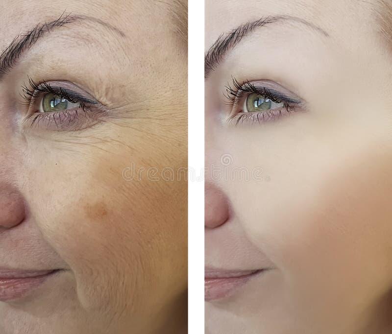 Морщинки девушки старея перед и после процедурами стоковое фото rf