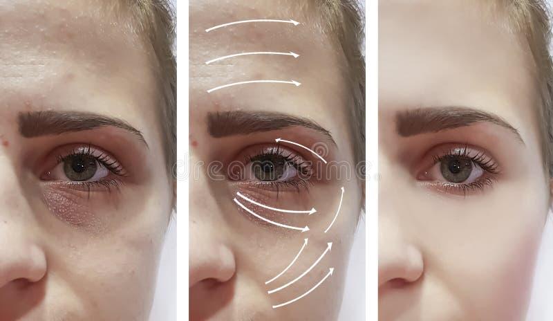 Морщинки женщины на стороне, контрасте перед и после процедурами, стрелке влияния обработки результатов стоковые фото