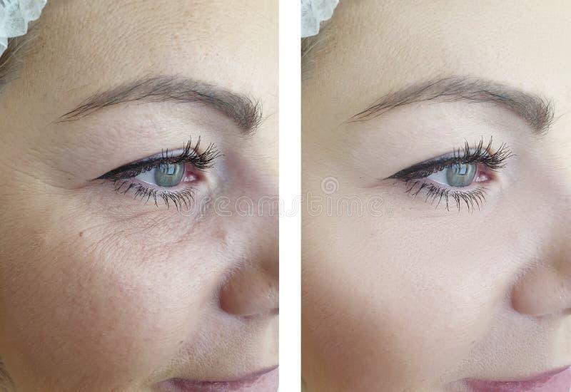 Морщинки женщины смотрят на подмолаживание результатов глаза перед и  стоковая фотография