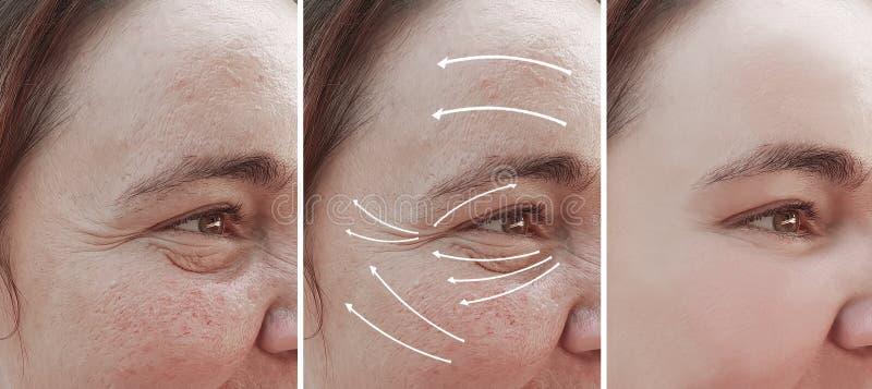 Морщинки женщины смотрят на rosacea перед и после коррекцией терапией косметологии разнице во влияния, стрелку стоковые фото