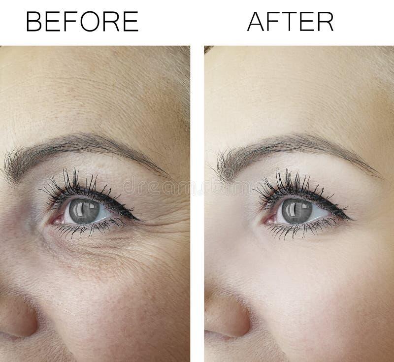 Морщинки перед и после обработкой обработки анти-, старея процедуры женщины стоковые фотографии rf