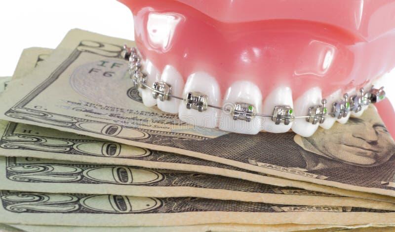 Модель зубов с расчалками и деньгами стоковые фотографии rf