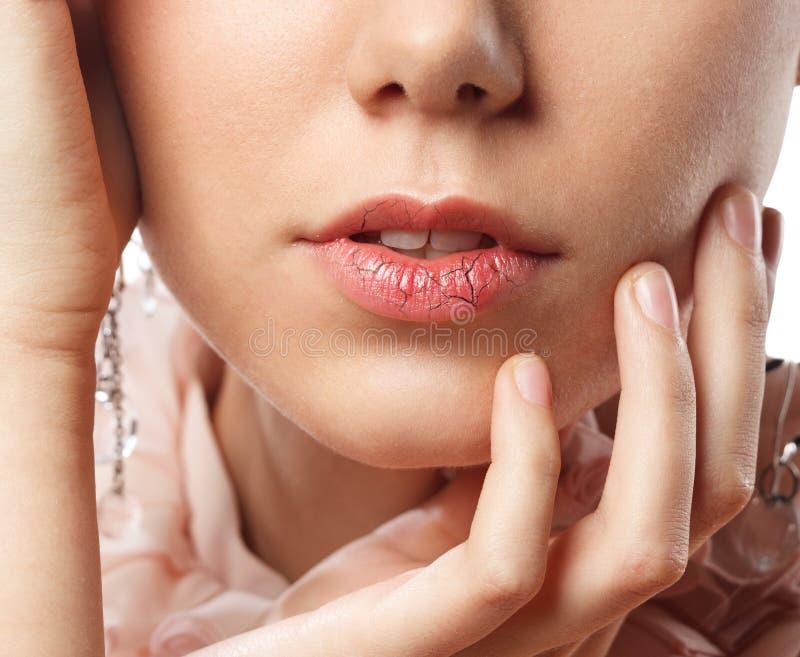 Молодая женщина chapped губы стоковые фотографии rf