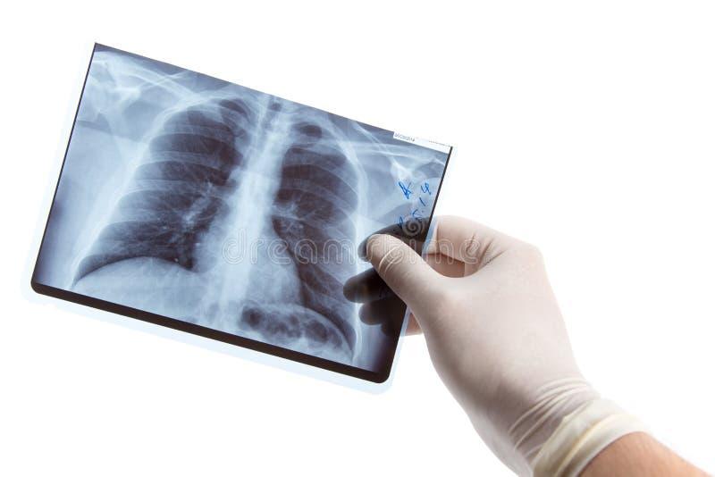Мужская рука в медицинской перчатке держа рентгенографирование легкего стоковое фото rf