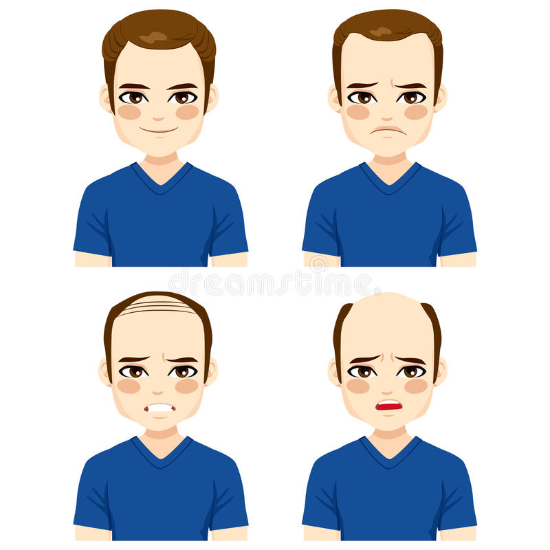 Мужские этапы выпадения волос бесплатная иллюстрация