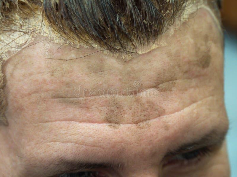 Мужской лоб запятнанный во время расцветки волос стоковое фото rf