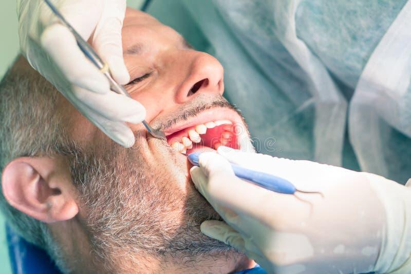 Мужской пациент во время зубоврачебной гигиены на офисе дантиста стоковые фотографии rf