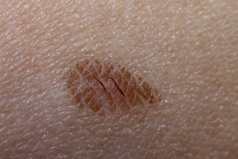 Мягкие раны на коже стоковые изображения
