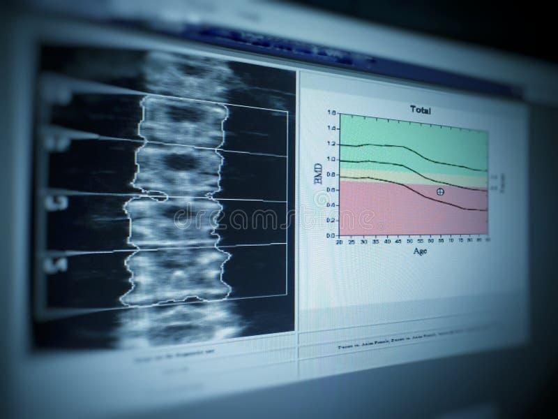 Мягкое и расплывчатое изображение: плотность косточки особенного изображения рассмотрения медицинского поясничная на белой предпо стоковое изображение