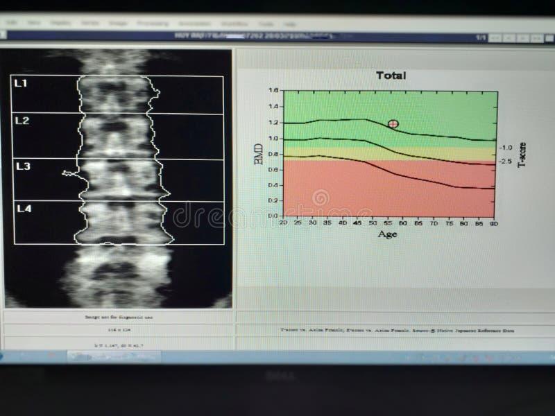 Мягкое и расплывчатое изображение: плотность косточки особенного изображения рассмотрения медицинского поясничная на белой предпо стоковые изображения rf