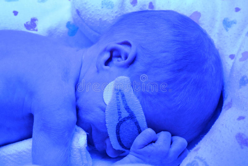 Младенец рожденный преждевремено под светом Bili стоковое изображение rf