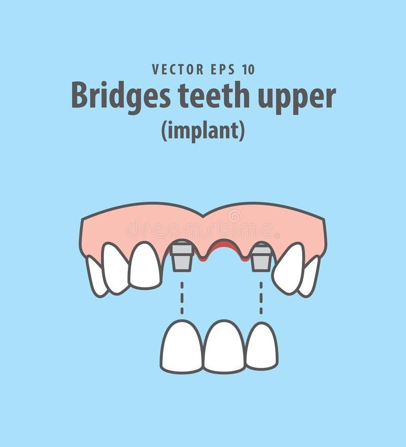 Наводит вектор иллюстрации implant зубов верхний на голубом backgr бесплатная иллюстрация