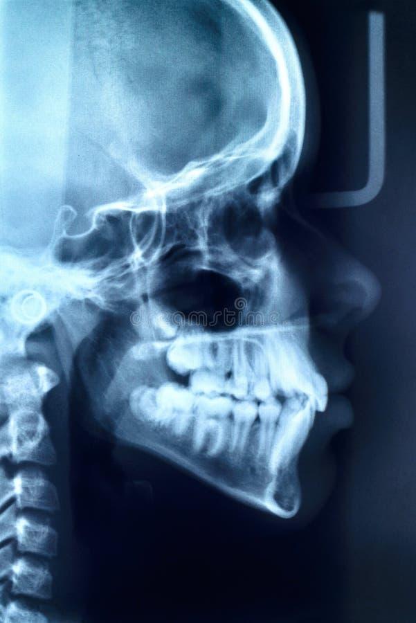 Накалять и излучающая развертка MRI стоковое изображение