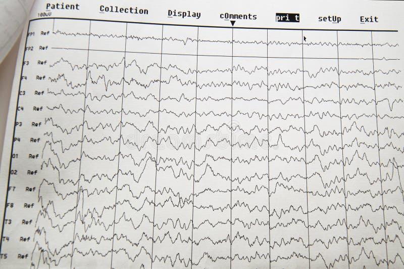 НАПРИМЕР метод electro физиологопсихологический контролируя Волна EEG в человеческом мозге, EEG ребенка, проблемах в электрическо стоковое изображение rf