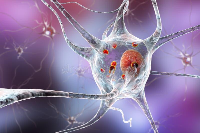 Нейроны в Parkinson& x27; заболевание s иллюстрация вектора
