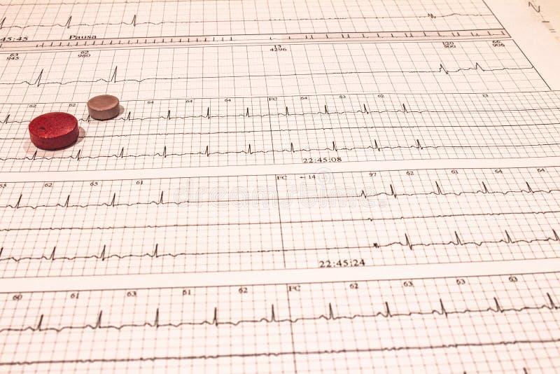 Некоторые таблетки на электрокардиограммах Показатели сердечной деятельности Лицензированные лекарства в формах планшетов Концепц стоковая фотография rf