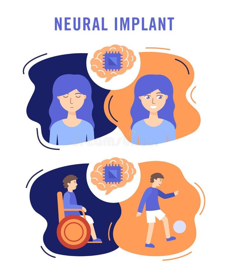 Нервный имплантирует плоско концепцию иллюстрации вектора медицинскую иллюстрация вектора