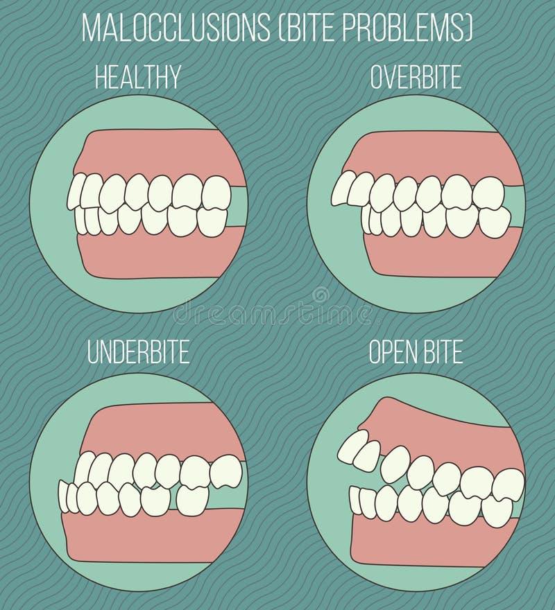 нечестные зубы Проблемы Malocclusion стоковые изображения rf