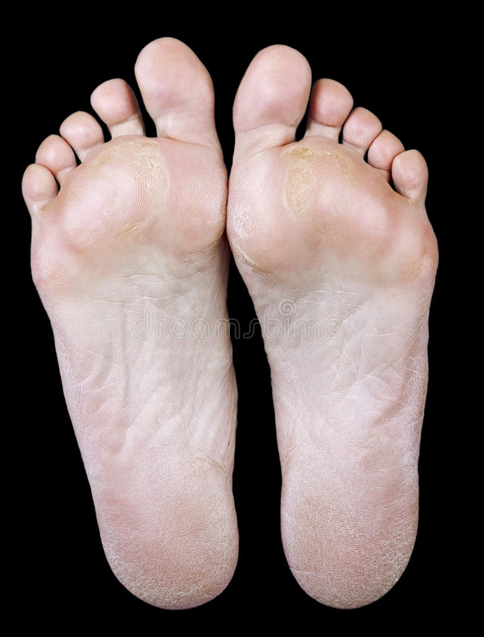 Нога женщины с каллюсами стоковая фотография rf