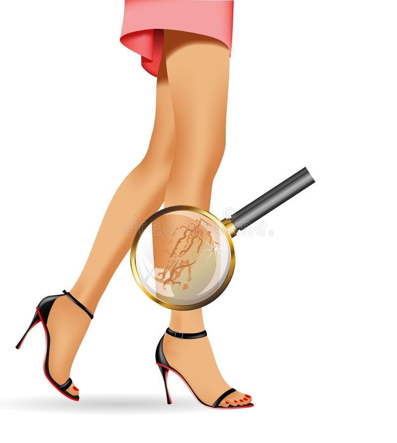 Ноги женщины тонкие и varicose с символами здоровья бесплатная иллюстрация