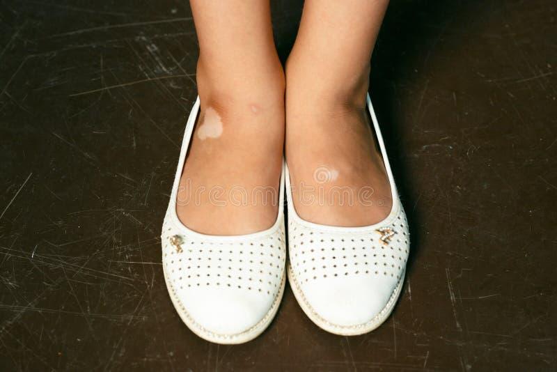 Ноги ребенка с vitiligo на коже стоковое фото rf
