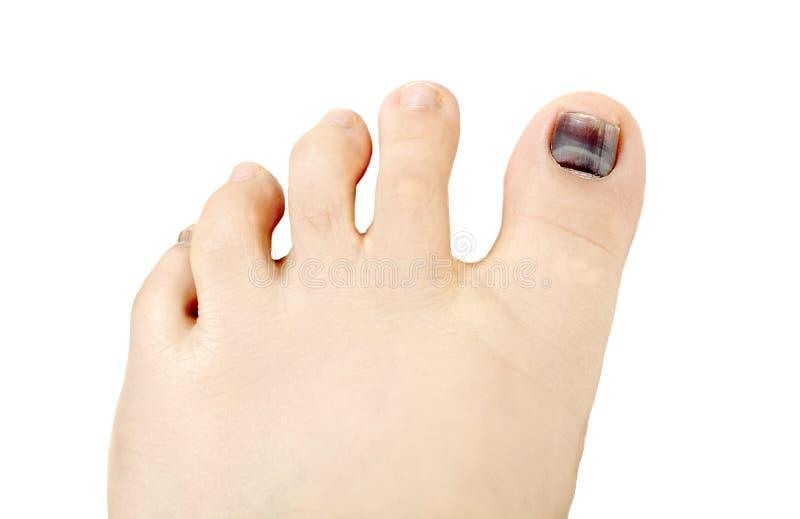 Ноготь Subungual гематомы голубой и черный пальца ноги стоковое фото rf