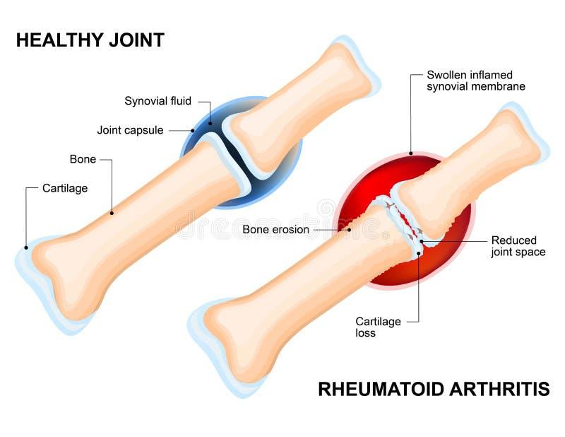 Нормальное соединение и ревматоидный артрит иллюстрация штока