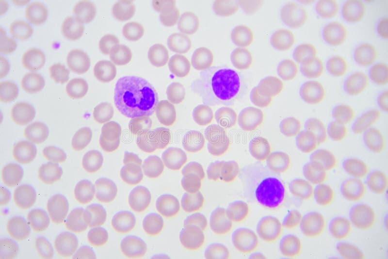 Нормальные лейкоциты стоковые изображения