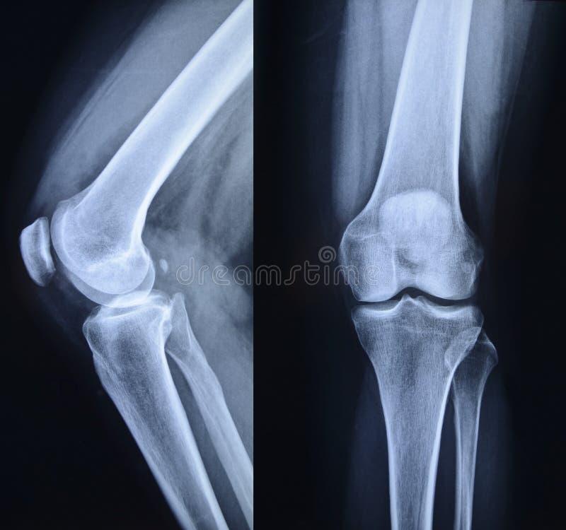 Нормальный рентгеновский снимок колена стоковая фотография rf