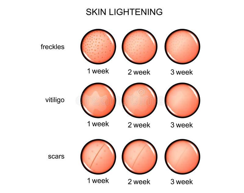 Облегчать кожи веснушки, vitiligo, шрамы бесплатная иллюстрация