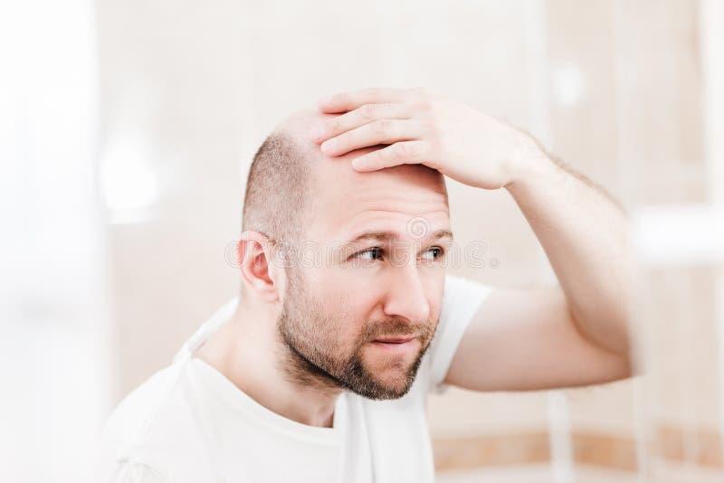 Облыселый человек смотря зеркало на головных плешивости и выпадении волос стоковое фото rf