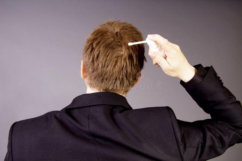 обрабатывать потери волос стоковые фотографии rf