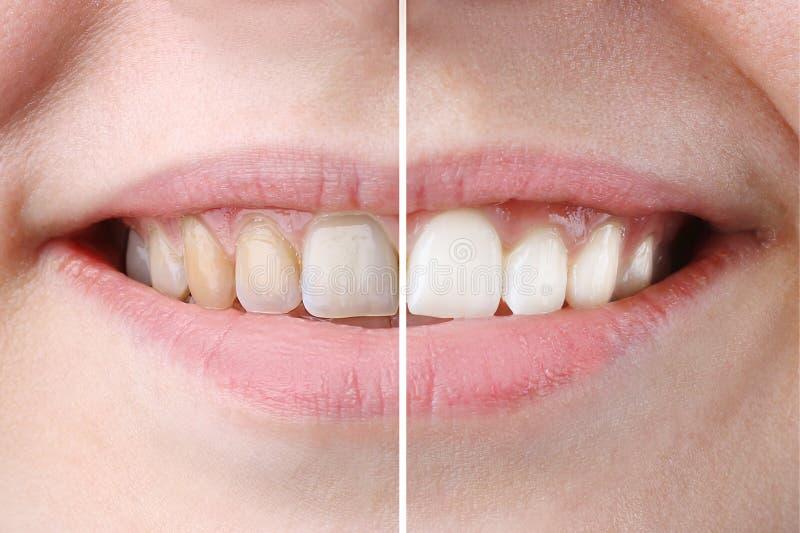 Обработка забеливать или отбеливания, прежде и после, зубы женщины и улыбка, конец вверх, на белом стоковые изображения rf