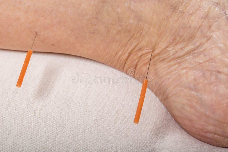 Обработка иглоукалывания на ноге стоковые изображения