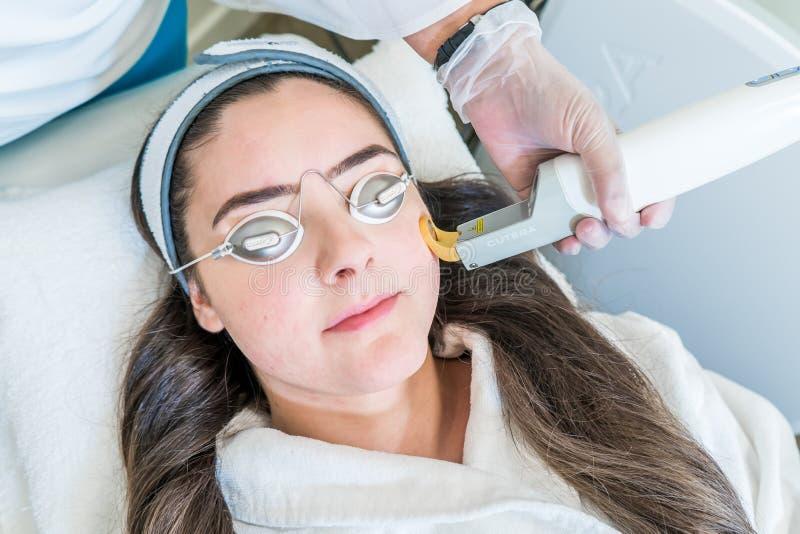 Обработка кожи лазера используя лазер Excel v Cutera Шоу логотипа Cutera Пациент носит изумленные взгляды лазерного луча защитные стоковое фото