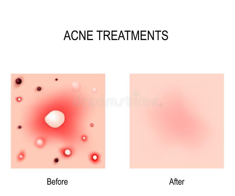 Обработка угорь Before and after проблемы кожи бесплатная иллюстрация