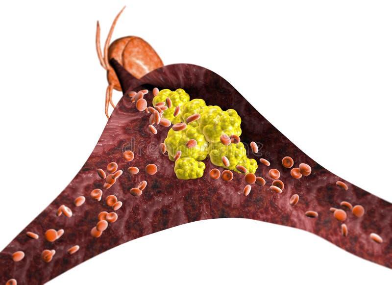 Образование холестерола, сало, артерия, вена, сердце Суживать вены для тучного образования бесплатная иллюстрация
