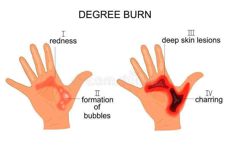 Ожог степени иллюстрация вектора