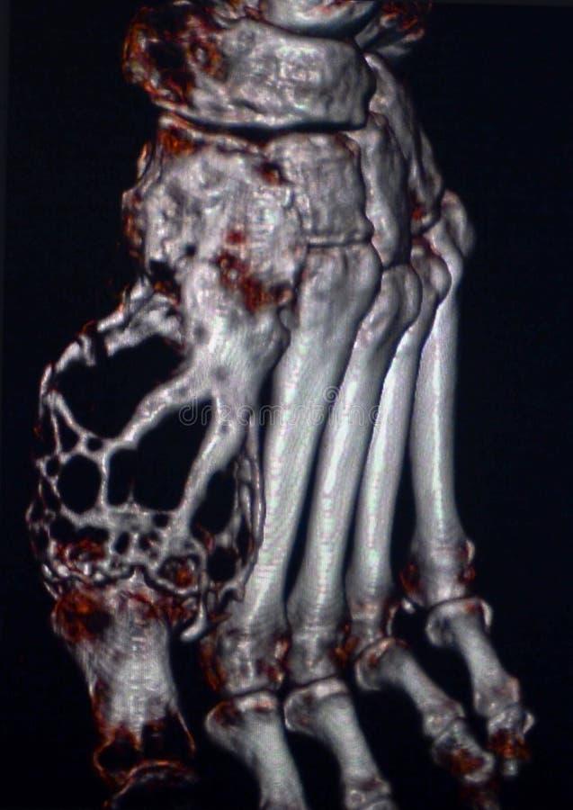 Опухоль косточки, нога, CT стоковая фотография