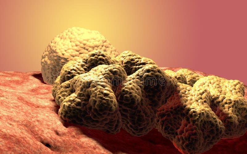 Опухоль раковой клетки, медицинская иллюстрация иллюстрация штока