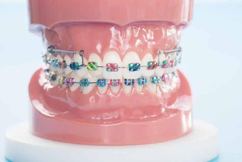 Ортодонтическая модель стоковое изображение