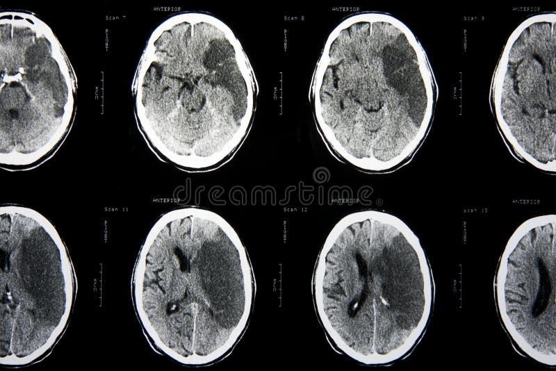 оскорбленный мозг ct стоковые фотографии rf