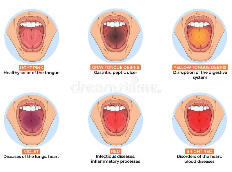 Illustration of diagnosis of different diseases royalty free stock image